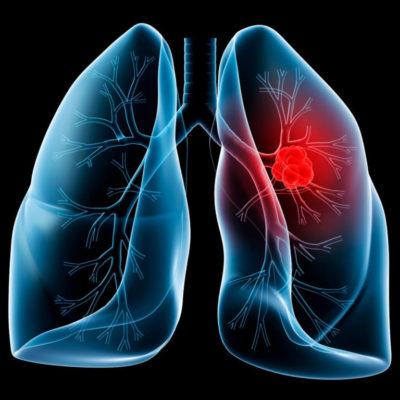 El 48% de los pacientes con ETV desarrollan embolia pulmonar
