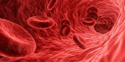 Nuevos stents venosos para prevenir el síndrome postrombótico