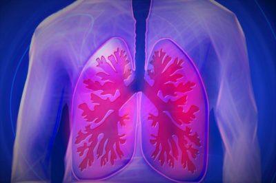 La Jiménez Díaz pone en marcha un protocolo para el tromboembolismo pulmonar