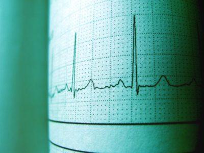 El 44,5% de los pacientes con fibrilación auricular no reciben un tratamiento correcto