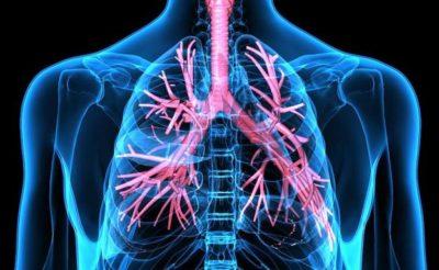 El 15% de las embolias pulmonares se presentan en forma de síncope