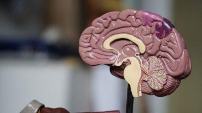 ¿La demencia es un factor de riesgo de muerte en pacientes con fibrilación auricular?